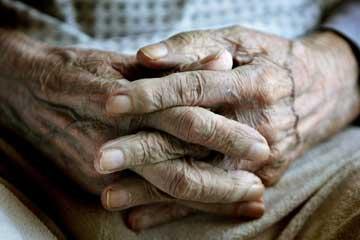 A doença de Alzheimer é mais frequente após os 65 anos