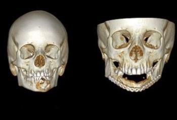 Caso de uma criança de 11 anos, antes e depois da reconstrução da mandíbula
