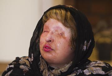 Ameneh Bahrami, 30 anos, perdeu a visão em 2004