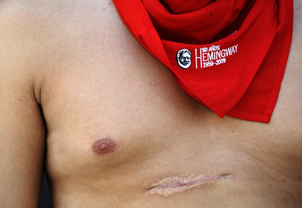 O chileno Alonso Ceardi - que foi gravemente ferido durante uma corrida de touros no festival em 2010 - posa com o típico lenço vermelho de San Fermin. Alonso Ceardi quase morreu quando um touro de meia tonelada lhe deu uma cornada no peito. Mas mesmo assim regressou a Pamplona este ano para participar no festival
