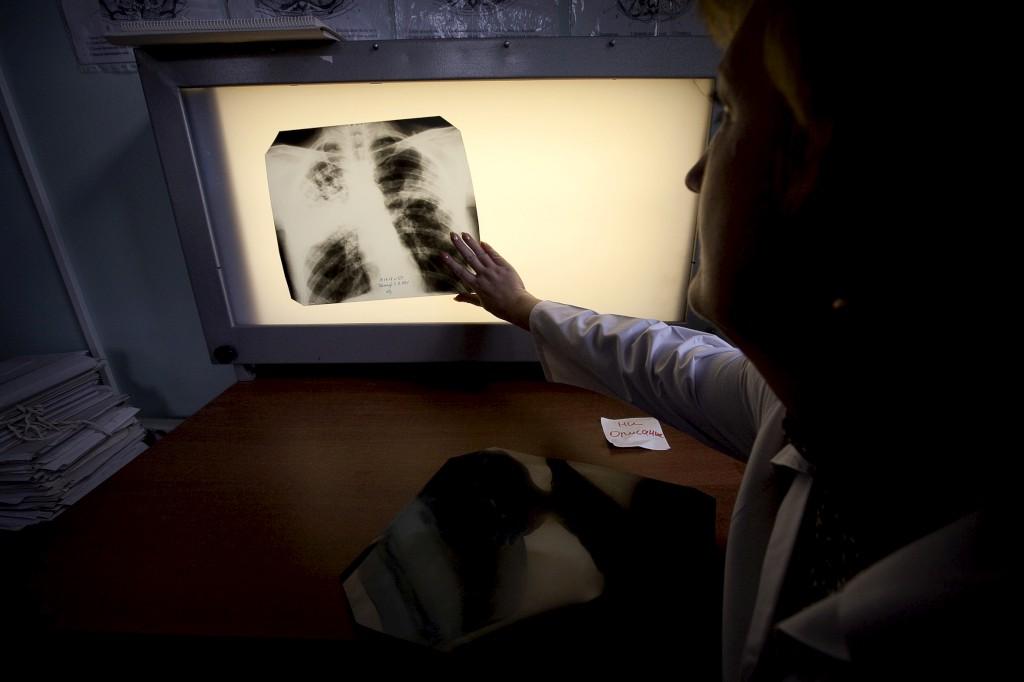 O tratamento da tuberculose pode chegar a demorar dois anos e meio