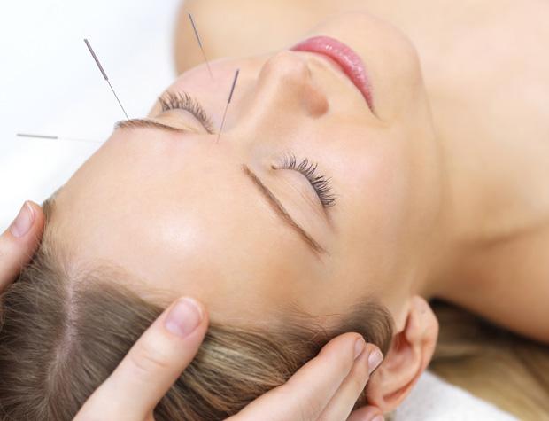 Acupunctura no tratamento da infertilidade