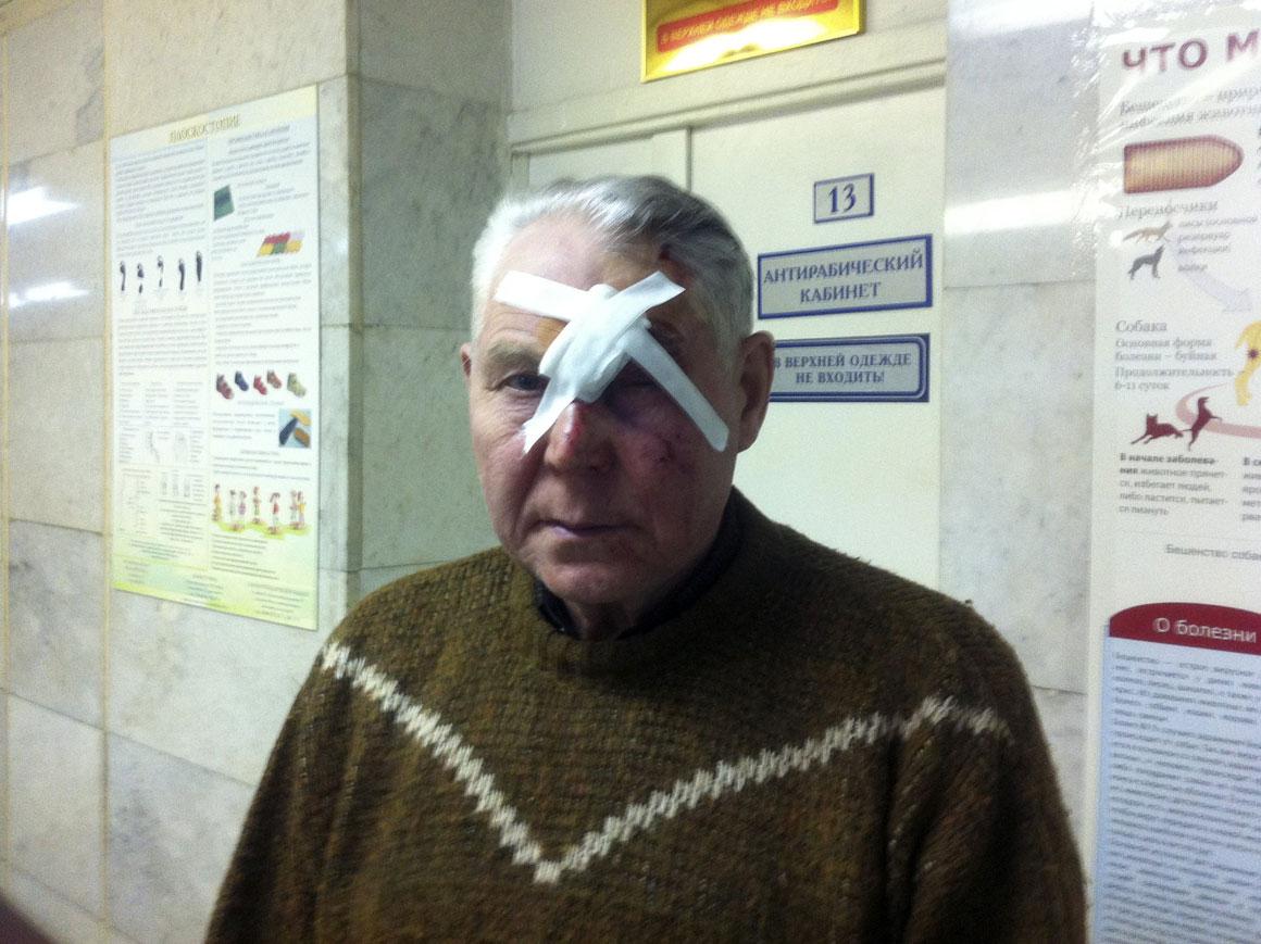Vyktor, um dos mais de mil feridos