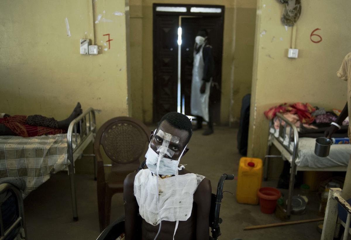 Vítima de violência em Malakal, Sudão do Sul