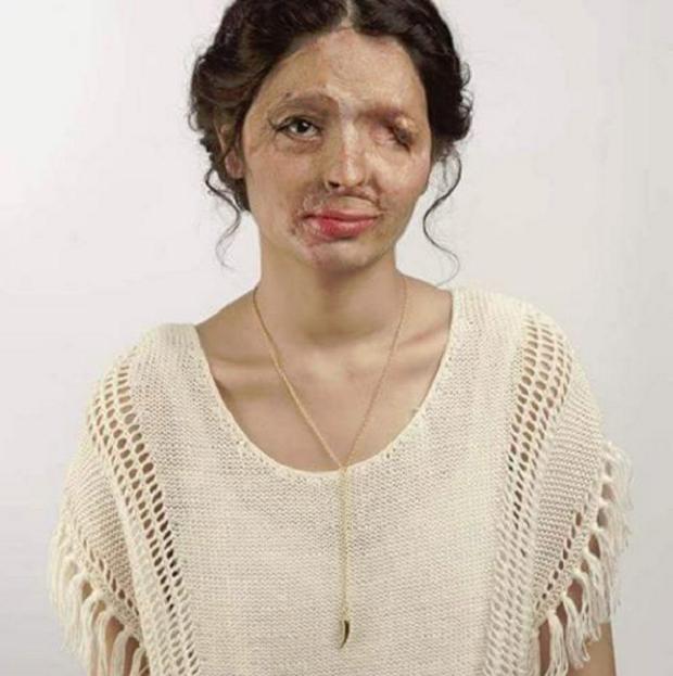 Desfigurada pelo ácido, jovem pede consciencialização na Semana da Moda de Nova Iorque