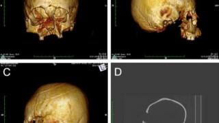 Deformações nos crânios encontrados na Croácia