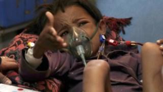 direitos-humanos,conflitos,unesco,solidariedade,fome,iemen,