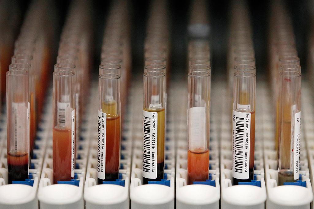 A sequenciação do genoma permite, por exemplo, detectar doenças como a trissomia 21
