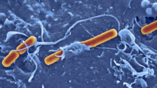 Bactérias <i>Shigella</i>, a laranja
